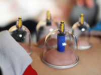 Therapeutic Cupping Therapy